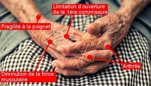 crière jardin thérapeutique - difficultés préhension mains âgées